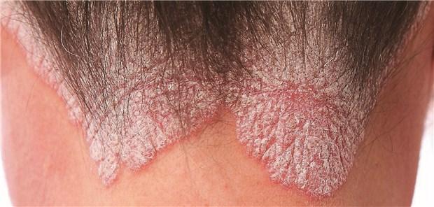 psoriasis was ist das különböző méretű vörös foltok a karokon és a lábakon
