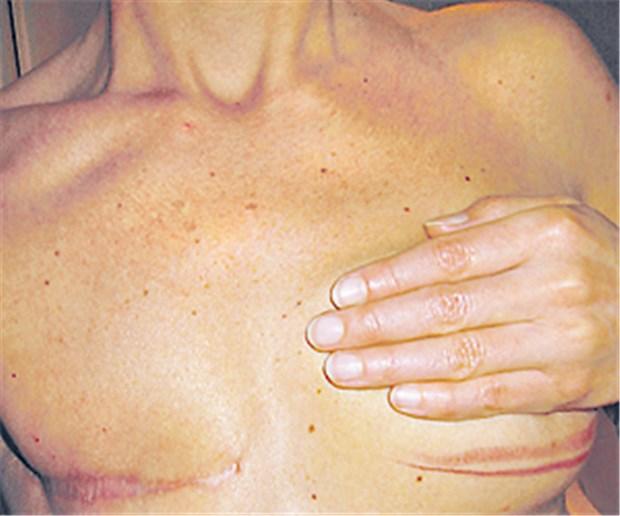 Verlängert prophylaktische Op der zweiten Brust das Leben?