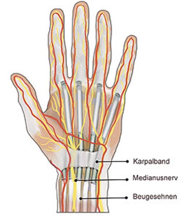 Lange wie krank op karpaltunnelsyndrom Hand