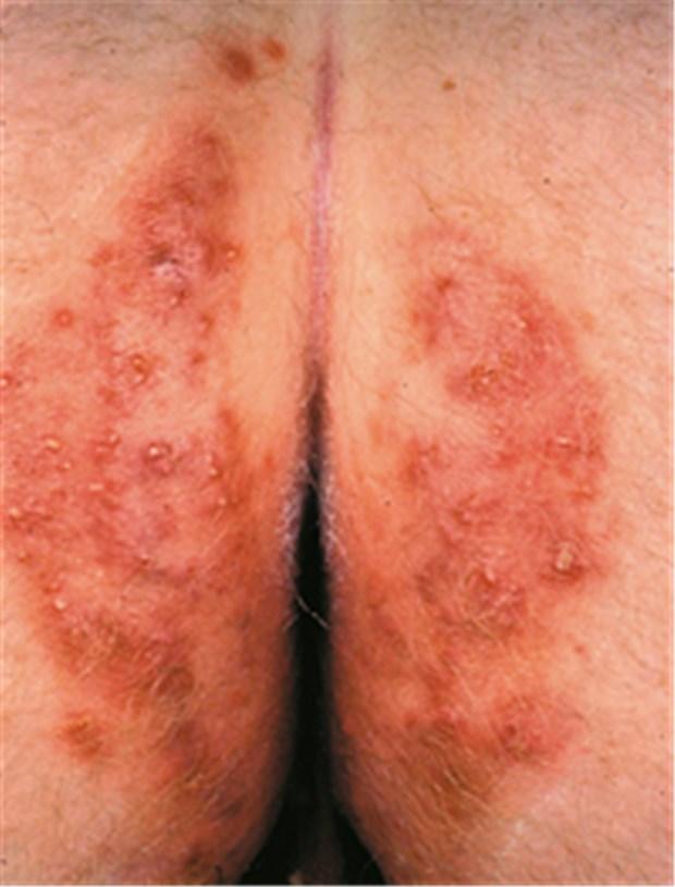 Ansteckend leistenpilz Hautpilz: Ursachen,