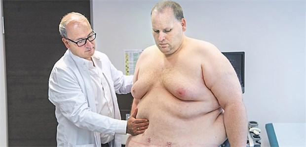 Bariatrische Operation vor und nach dem Abnehmen