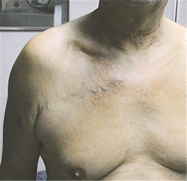 Adern am oberarm sichtbare Oberflächliche Venenthrombose
